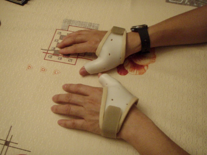 the reason for the unconventional twig tree - tendinitis on both hands (2011)! (immobilised by plastic splints to let them rest and heal!)